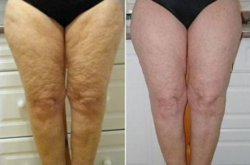 cellulite on legs before and after anti aging creams