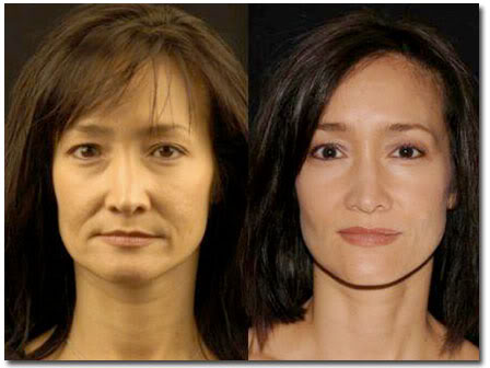 Anti Aging Creams That Produce Results