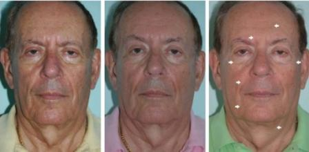 man before and after Anti Aging Treatments