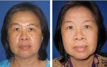 Lady before and after Anti Aging Treatments
